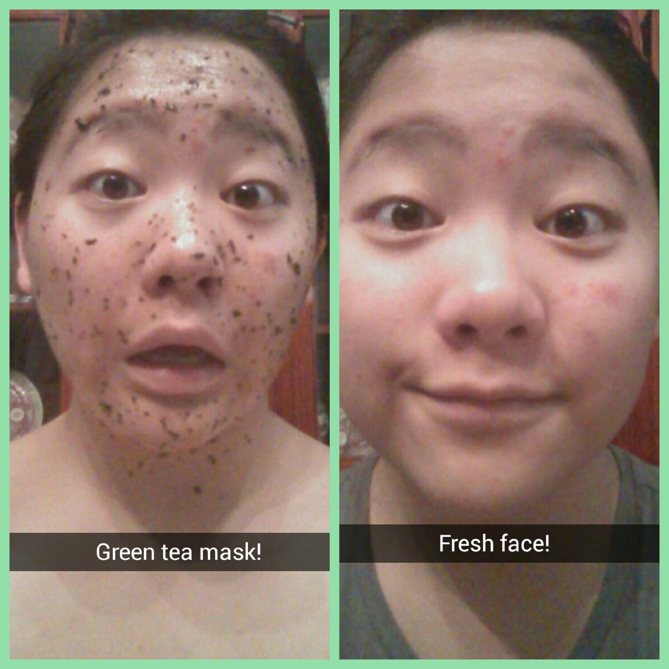 Bag Face Tea Green Acne On